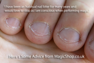 Magicians That Bite Nails - How to Stop