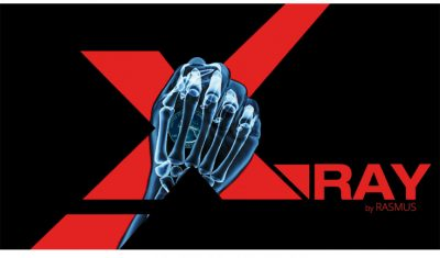 X-Ray by Rasmus Reviews
